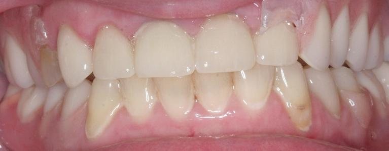 Cosmetic-Dentistry-After-Image