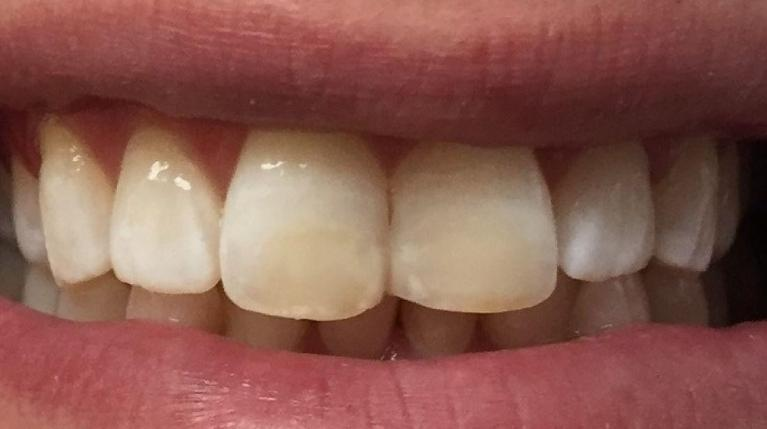In-Office-Whitening-and-Fillings-After-Image