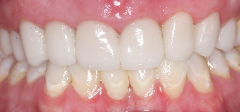 Porcelain-Crowns-and-Scaling-Root-Planing-After-Image