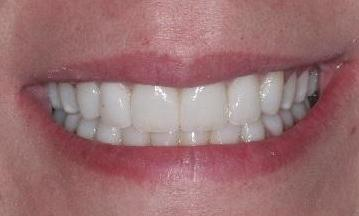 Veneers-and-Whitening-After-Image