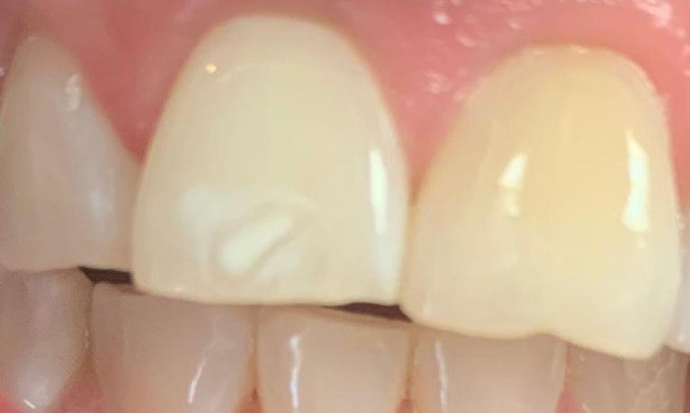 ICON-Resin-Infiltration-Treatment-Before-Image