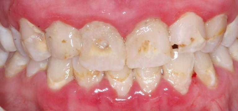 Porcelain-Crowns-and-Scaling-Root-Planing-Before-Image